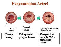 obat-tradisional-tersumbat-pembuluh-darah